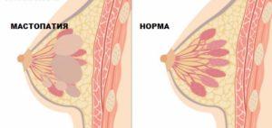 Фиброзно кистозая мастопатия