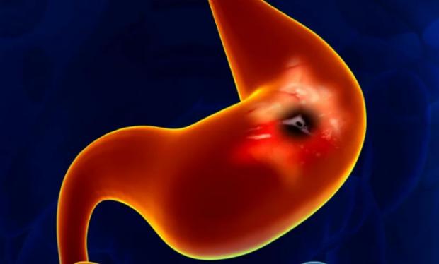 Рак от язвы желудка