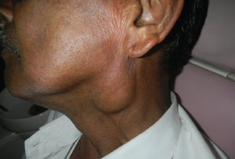 Аденолимфома