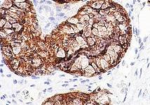 Железистый рак