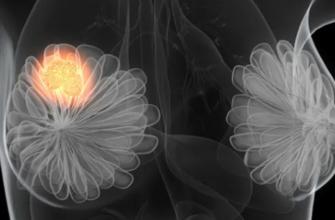 Листовидные опухоли и саркомы молочной железы