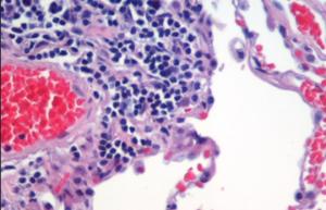 Ретикулосаркома и лимфогранулематоз
