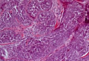 Рак потовых желез