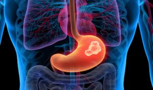 Опухоли желудка