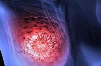Опухоли (рак) молочной железы