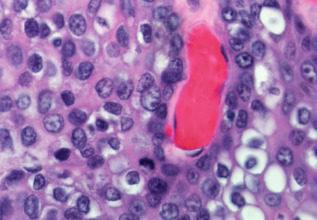 Мукоэпидермоидные опухоли