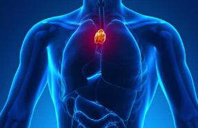 Тимома - опухоль (рак) вилочковой железы